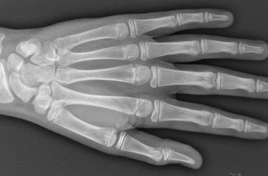 Lukkking av epifyseskiver skjer gradvis gjennom barnealder, i et fastsatt mønster men med individuell variasjon i hastighet, blant annet avhengig av genetikk, ernæring, sykdom og omsorg. Bildet viser venstre hånd fra gutt med kronologisk alder 15 og skjelett-alder 14 år. Takk til Lil-Sofie Ording Müller og Derk Avenarius for røntgenbildet.