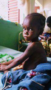 Saran er 4 år og har vært innlagt i flere uker med alvorlig underernæring med ødemer (kwashiorkor). Her er hun på bedringens vei og kan snart komme hjem.